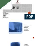 Caso Clínico Clinica Medica [Autoguardado]