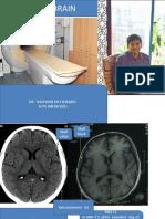 MRI BRAIN FINAL dr shamol.pdf