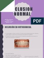 Oclusion Normal