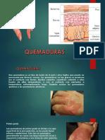 quemaduras (1)