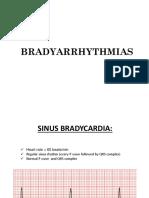 BRADYARRYTHMIAS
