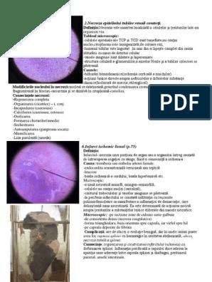 tratament nediferențiat al displaziei țesutului conjunctiv