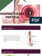 Esofagitis No Peptica