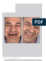 Dynamic Documentation of the Smile and the 2D:3D Digital Smile Design Process