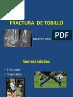 Fractura de Tobillo 2