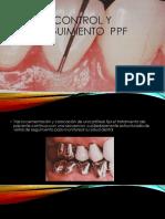 Cuidados y Seguimiento de Las Protesis Fijas