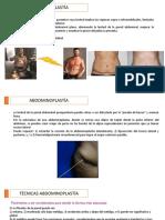 abdominoplastía corregido