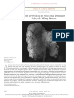 immagine liver involvement in ADPKD.pdf