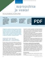 Sondaje vesical y punión suprapúbica (1)