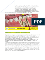 How to Assess Your Teeth Decay Risk