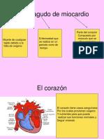 Infarto Agudo de Miocardio Adultos 2-3