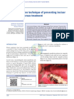 Prevent incisor flaring in fixed functional appliance