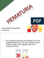 Hematuria en Pediatria