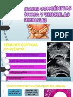 anomalias-prostaticas
