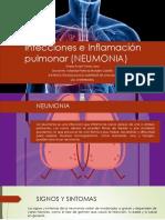 Infecciones e Inflamación Pulmonar (NEUMONIA)