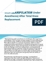 MUA (Manipulation Under Anesthesia) After Total Knee Replacement