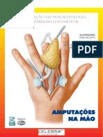 AMPUTAÇÕES da mão.pdf