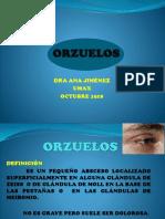 Oftalmo ORZUELO