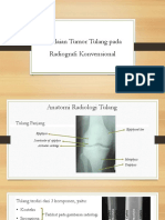 Tumor Tulang Pada Radiologi