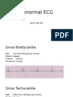Abnormal ECG 1.pptx