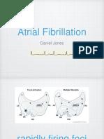 Atrial Fibrillation Medicine Presentation