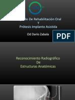 reconocimiento radiografico