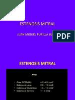 Estenosis Mitral