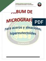 Figure 1aleación Hipereutectoide
