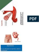 Diptico de Enfer Digestivas