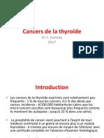 Cancers de La Thyroïde