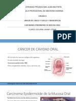 Carcinoma Epidermoide Oral
