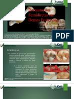 Restauração Semidireta Em Dentes Posteriores