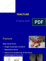 K13-Fracture-and-dislocation.ppt