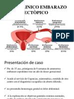 Caso Clinico Embarazo Ectòpico