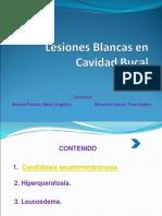 68893075-Lesiones-Blancas-en-Cavidad-Bucal.ppt