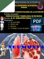 Neumonia[1]