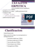 Encefalitis Herpes