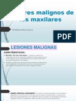 Tumores Malignos de Los Maxilares