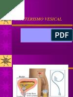 Cateterismo Vesical - Copia
