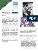 Cap. 178 - Endocardite
