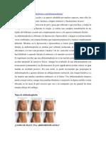 Abdominoplasti A