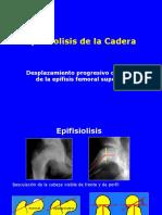 Epifisiolisis de Cadera