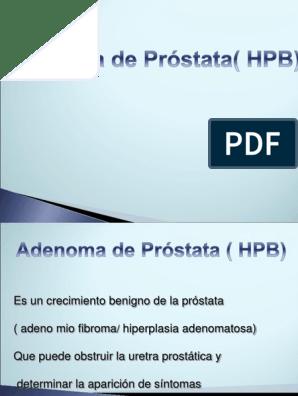 causas de úlcera de adenoma de próstata