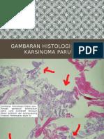 Gambaran Histologi KARSINOMA PARU
