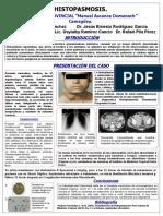 Histoplasmosis No. 2.ppt