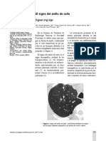 13-23-1-SM (1).pdf