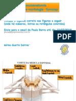 Prova Mirna - Macroscopia Neuro Exercício 18 Fs