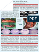 mucinous adenoca in pedia.pdf