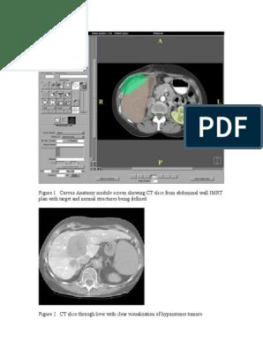 usg prostata pdf