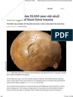 Study Concludes 33,000-Year-old-skull Shows Signs of Blunt Force Trauma